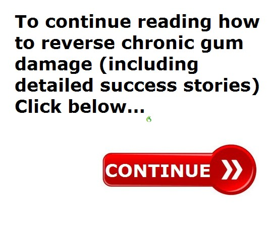 GUM REMEDIES
